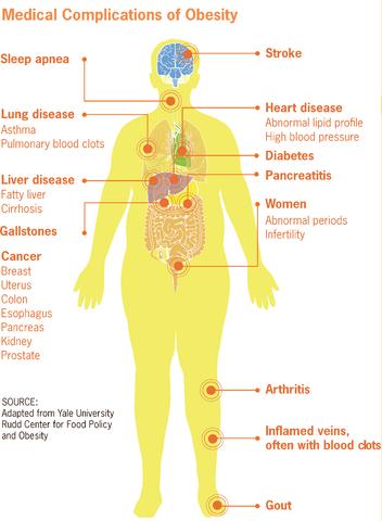 risks of big belly